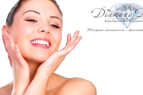Полный комплекс услуг по установке зубных имплантатов (Швейцария, Корея) в центре Diamond Dent.  Скидка до 72%