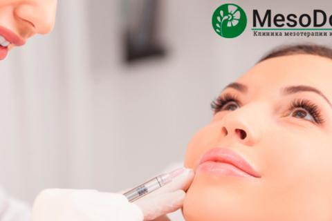 Контурная пластика лица филлером Surgiderm 30 XP (коррекция губ, носогубных складок, скул, контуров лица) в клинике MesoDoctor. Скидка 57%
